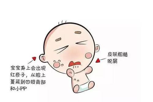 婴儿湿疹是怎么得的? 婴儿湿疹和过敏体质有关系吗