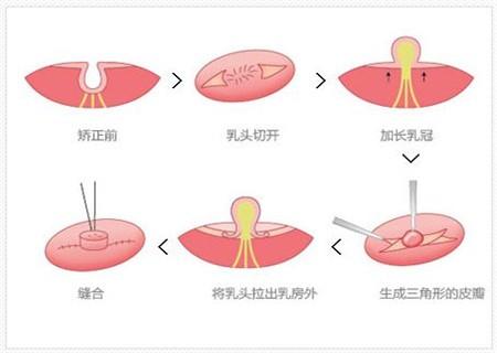乳头内陷怎么引起来的 副乳变硬怎么回事