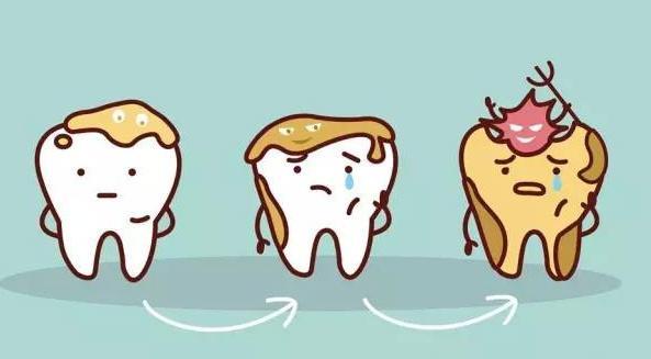 牙菌斑附着在牙齿上.jpg